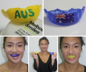 Uyen 2 mouthguards